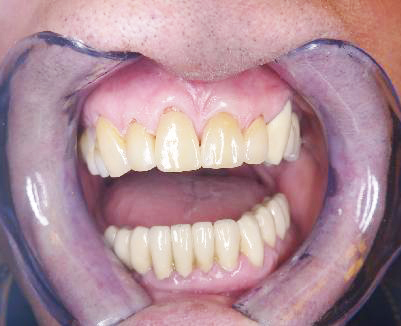Výsledná práce po nacementování v ústech pacienta.