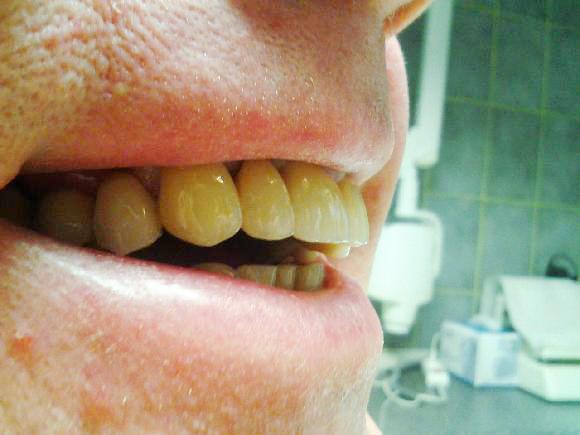 Detailní záběr na tvar a povrchovou texturu můstku po nacementování v ústech pacienta.