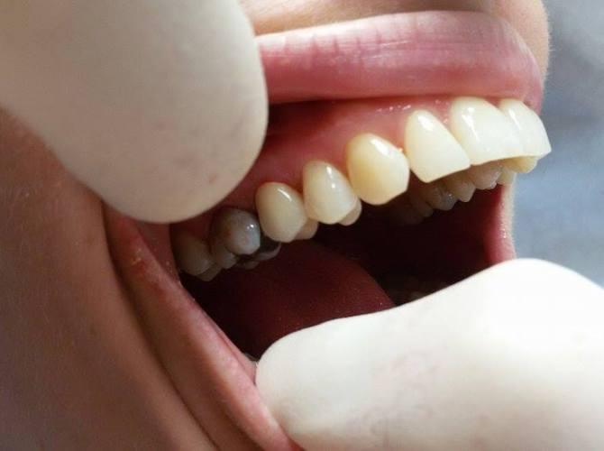 Hotová korunka v ústech pacienta.